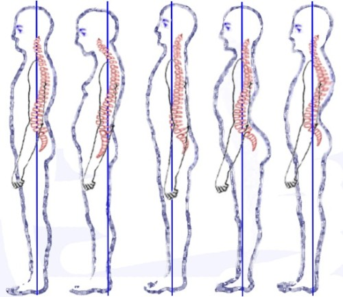 austin-posture-improvement-rolfing