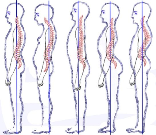 austin-posture-improvement-rolfing